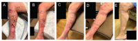 images from the istari oncology data where you can visibly see the impact of PVSRIPO. Leg with sores getting progressively better